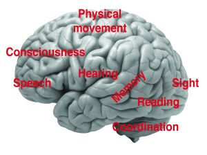 Fig. 1: The reason brain injury support needs to be so customized.